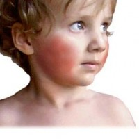 Childhood illness Fifth-disease