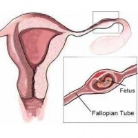 Loss Ectopic-pregnancy