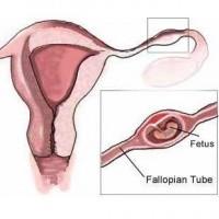 Loss Ectopic-pregnancy