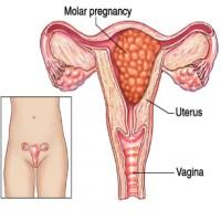 Loss Molar-pregnancy