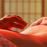 Childbirth Acupuncture